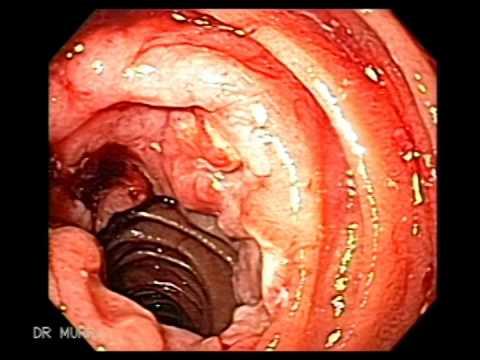 Endoscopy of Duodenal Lymphoma - YouTube