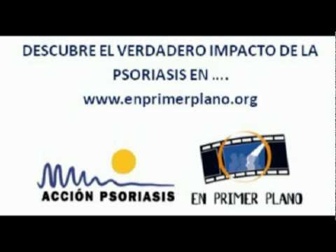 Cuñas de Radio. Catalán