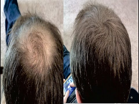 How To Hide Balding And Thinning Hair Cheaply Youtube