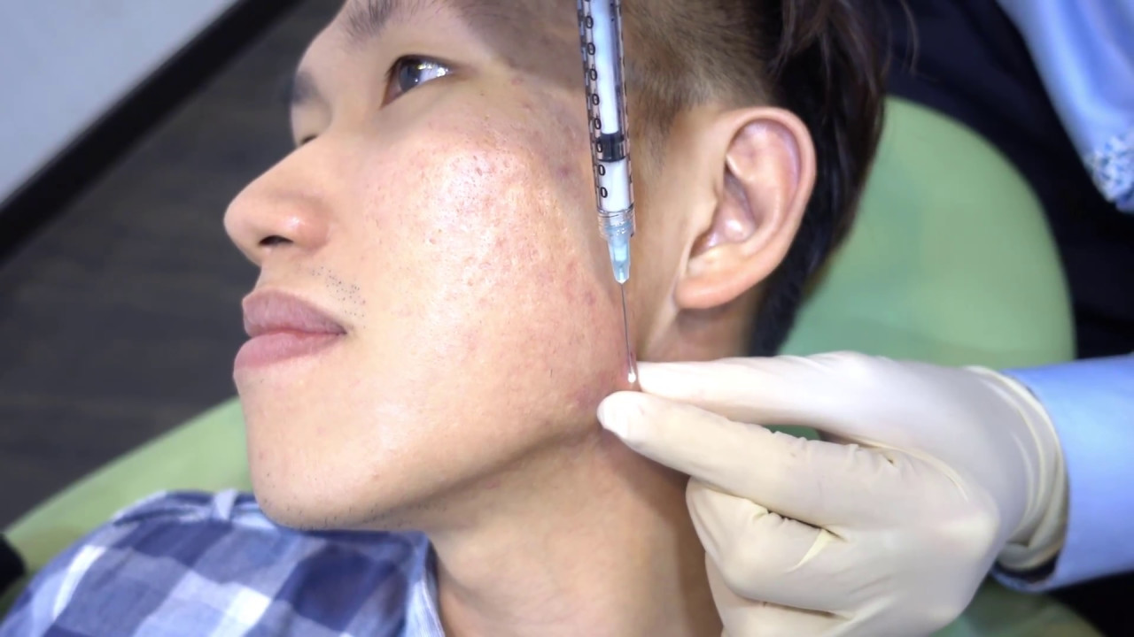 steroid injection for acne scars