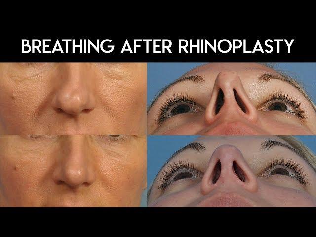 Breathing After Rhinoplasty
