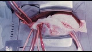 """【TBS Pictures】難易度の高い心臓移植手術""""バチスタ手術""""で、手術成功記..."""