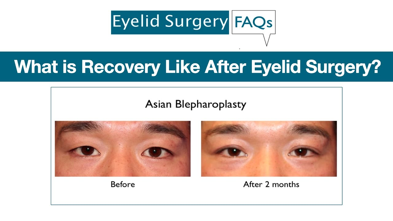 What is the Recovery Process Like After Different Types of Eyelid