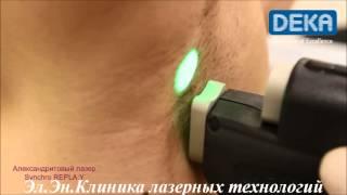 Лазерная эпиляция александритовым лазером Киев видео(, 2013-11-14T12:53:06.000Z)