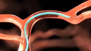 Severos y coágulos sanguíneos hematomas