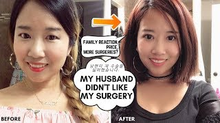 Eye-lid surgery : Family's Reaction, Price, More Plastic surgeries? Q&A Vlog ep. 179