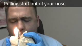 Pulling stuff out of your nose after surgery, septoplasty