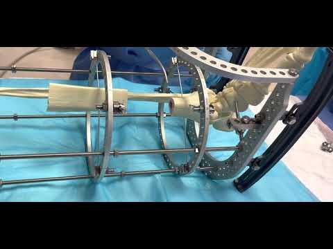 Truelok Circular Fixator for Bone Transport for Orthoplastic Approach
