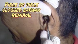 Piece By Piece Clogged Earwax Removal