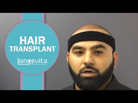 Group Travel for Hair Transplant in Turkey   Longevita