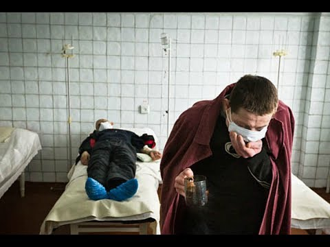 Как выявить туберкулез у взрослых