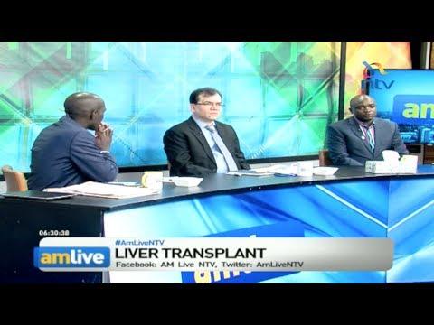 Kenya, India to partner to improve liver transplants & treatment of diseas