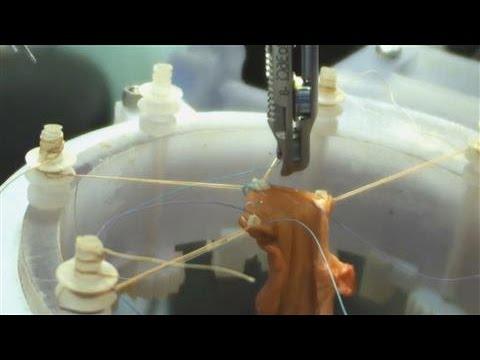Autonomous Robotic Surgery Takes a Step Forward
