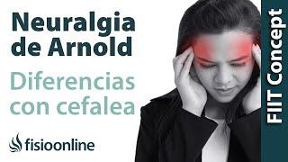 Dolor neuralgia cabeza de de síntomas