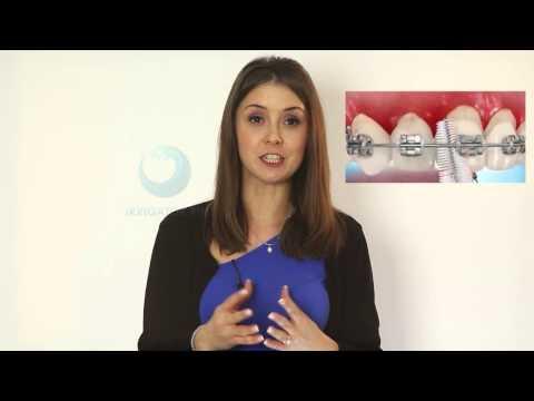 Вопрос: Как избежать боли во время подтяжки брекетов?