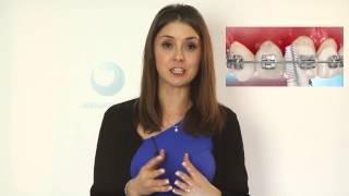 видео Видео: выбор стационарного ирригатора для ухода за брекетами