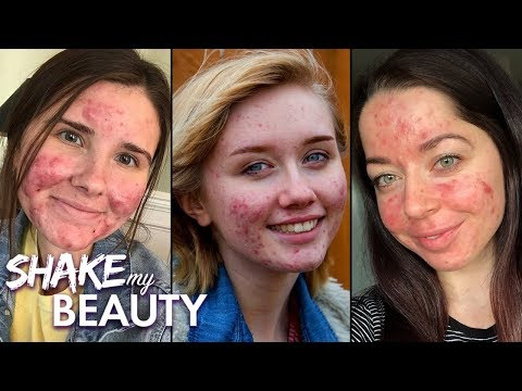 Living With Acne | SHAKE MY BEAUTY