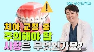 [교정Q&A] 치아교정시 주의사항은 무엇일까요?