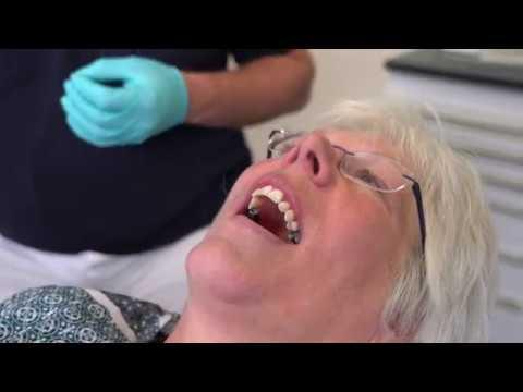 Panasil Putty soft  twee fase afdruktechniek complete behandeling