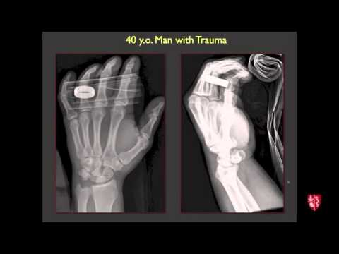 Radiology Boards Prep   MSK Cases   2015 Edition   YouTube