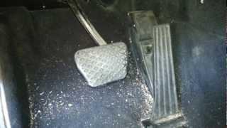 Bmw E46 E38 E39 Electronic Gas Pedal Removal DIY 330 540 740