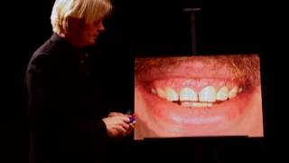 Cosmetic Dentist San Francisco 7 Thumbnail