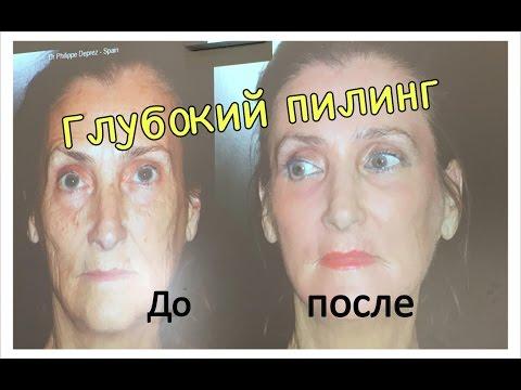 ФЕНОЛОВЫЙ ПИЛИНГ ЛИЦА. Глубокий пилинг лица SkinTech. Фото ДО и ПОСЛЕ.