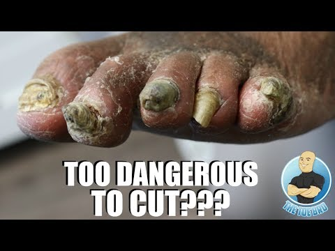 NAILS TOO RISKY TO CUT??? EXTREMELY THICK TOENAIL TREATMENT 'PART 1'
