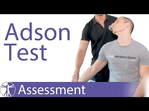 Adson Test | Thoracic Outlet Syndrome