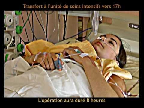 Opération de la scoliose - Scoliosis surgery