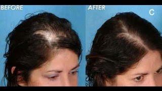 Alopecia Areata Hair loss treatment for women- Minoxidil Provillus Review