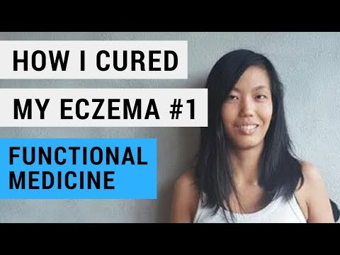 Eczema : How to Treat Eczema #1 using Functional Medicine