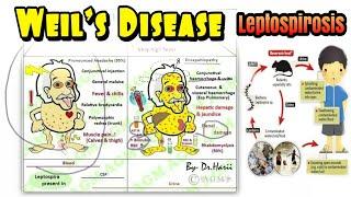 Kenali Wabah Leptospirosis & Pencegahannya.