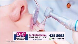 Blanqueamiento dental - Dr. Nicolás Olmedo