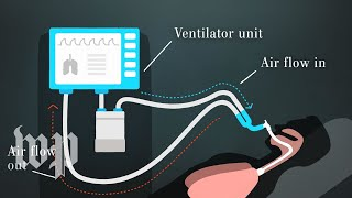 How ventilators work and why we need them to fight covid-19