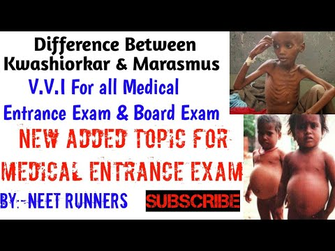 Kwashiorkor And Marasmus Difference Between
