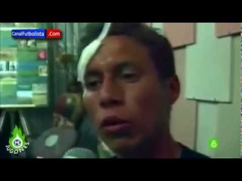 Peruvian footballer (Martin Dall'Orso) Brutally Assulted for missing PENALTY!!!