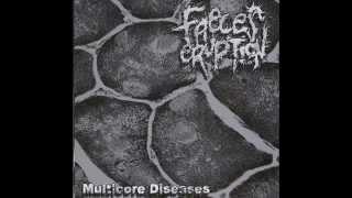 Faeces Eruption - Multicore Diseases