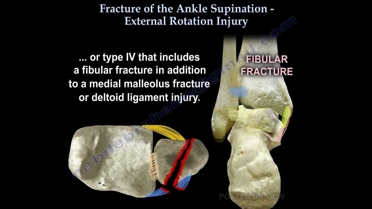 ankle fracture supination external rotation everything