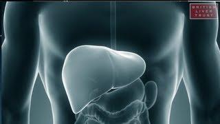 Hepatitis And A Fatty Liver