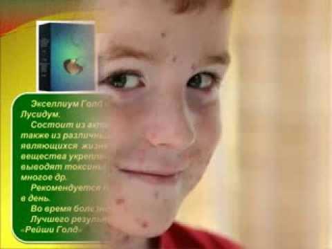 Краснуха у детей: симптомы и лечение, профилактика, фото