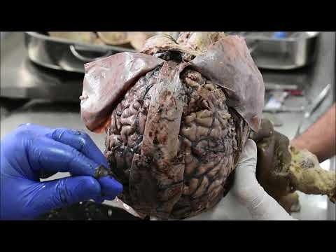 Removal of brain in dissection hall Jamnagar