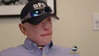 Severely-Burned Former Firefighter Opts for Face Transplant: Part 1 | ABC News