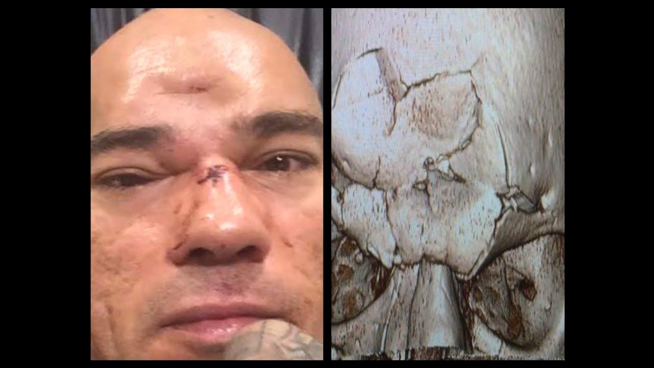 Crushed Skull Injury s...