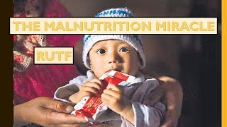 RUTF (READY TO EAT THERAPEUTIC FOOD) - TO COMBAT SEVERE ACUTE MALNUTRITION.