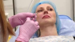 АирисКом: обучение студентов; практика по заполнению губ филлером