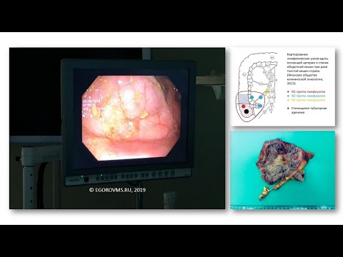 Тубулярная аденома слепой кишки. Лапароскопическая резекция илеоцекального отдела кишечника.