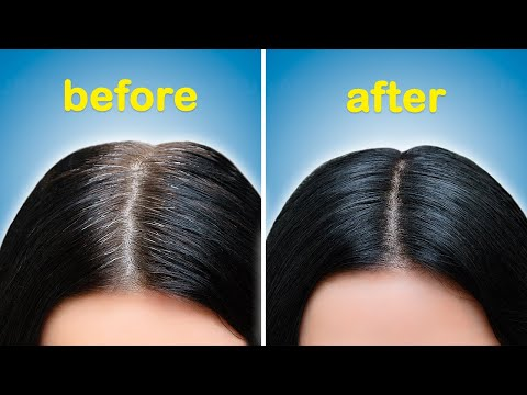 How To Turn White Or Grey Hair Into Black Naturally