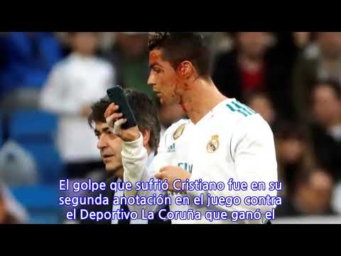 Real Madrid Vs Alaves Sportek