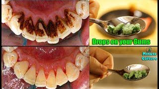 100 SUCCESS Rub only 2 drops on your Gums and teeth no Dentist anymore you will never Go to